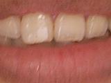 歯のホワイトニング クレスト ホワイトストリップス プレミアム 口コミ感想・評判体験談